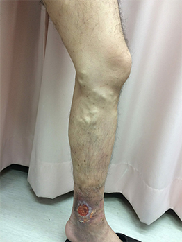 下肢静脈瘤